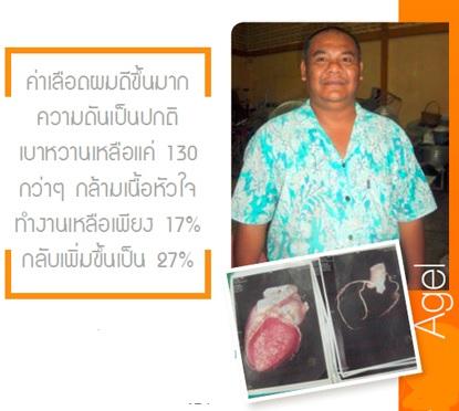 heart-agel-agel-hrt-เอเจล-อาเจล-จอย-gel-geltreat-ราคาถูก-ราคาสมาชิก-ฮาร์ท-heart-ไขมันสูง-ไม่อยากทานยา-อาหารเสริม-ผ่านอย-หัวใจตีบ-ความดันสูง-บำรุงหัวใจ-บายพาส-บอลลูน-โคเอ็นไซด์คิวเท็น-coq10-ทอรีน-แอลคาร์นิทีน-เห็ดหอยนางรม-รักษา-โรคหัวใจ-ไม่อยากผ่าตัด-เหนื่อยง่าย-ป้องกันโรคหัวใจ-ไขมันเลว-คอเลสเตอรอลสูง-อยากลดคอเลสเตอรอล-ไม่ทานยา