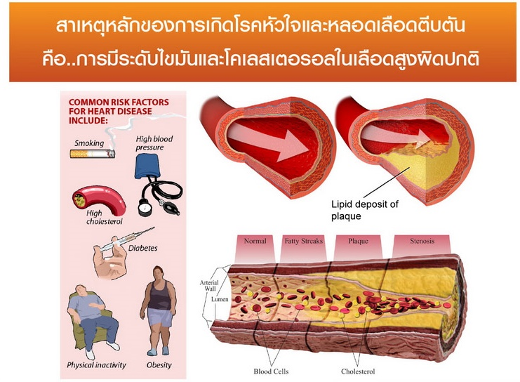 hrt-agel-LDL-agel-hrt-เอเจล-อาเจล-จอย-gel-geltreat-ราคาถูก-ราคาสมาชิก-ฮาร์ท-heart-ไขมันสูง-ไม่อยากทานยา-อาหารเสริม-ผ่านอย-หัวใจตีบ-ความดันสูง-บำรุงหัวใจ-บายพาส-บอลลูน-โคเอ็นไซด์คิวเท็น-coq10-ทอรีน-แอลคาร์นิทีน-เห็ดหอยนางรม-รักษา-โรคหัวใจ-ไม่อยากผ่าตัด-เหนื่อยง่าย-ป้องกันโรคหัวใจ-ไขมันเลว-คอเลสเตอรอลสูง-อยากลดคอเลสเตอรอล-ไม่ทานยา